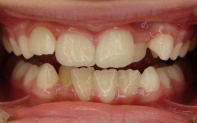 Ортодонтско лечение в смесено съзъбие